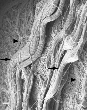 Collagen fibrils are organized into cables in skeletal muscle ECM