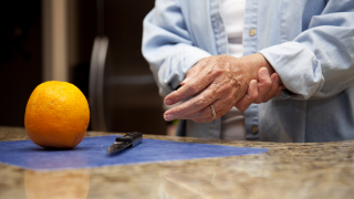 Arthritis can be improved with therapy