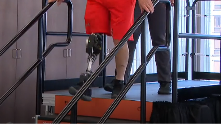 patient walking with new ai powered bionic leg