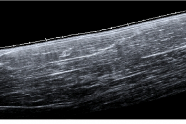 Extended field of view image of the biceps brachia