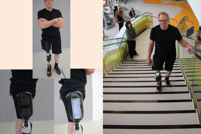 Open-Source Bionic Leg
