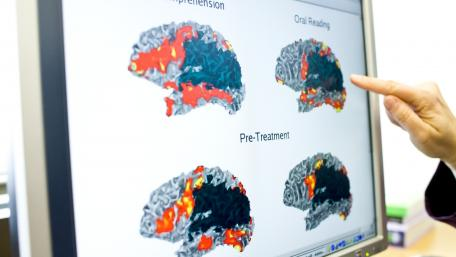 Intensive therapy programs look at the underlying cause of aphasia